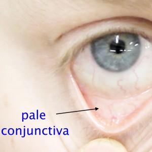 Conjunctival-pallor1_Fotor_Fotor